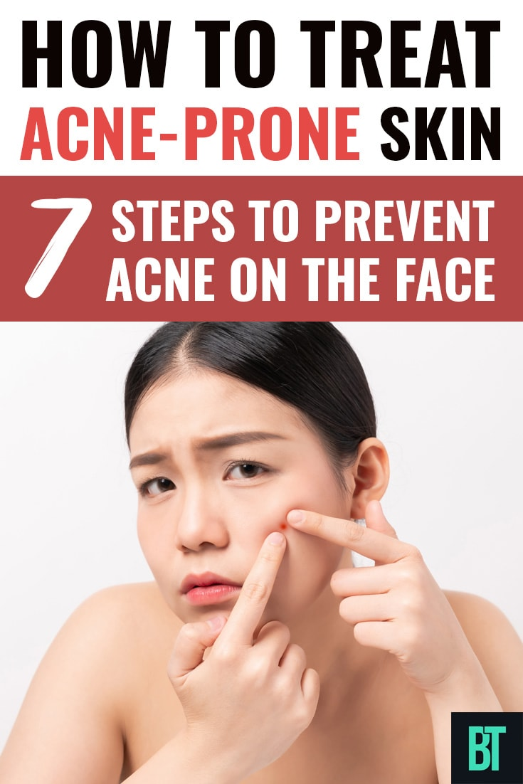 How to Treat Acne-Prone Skin