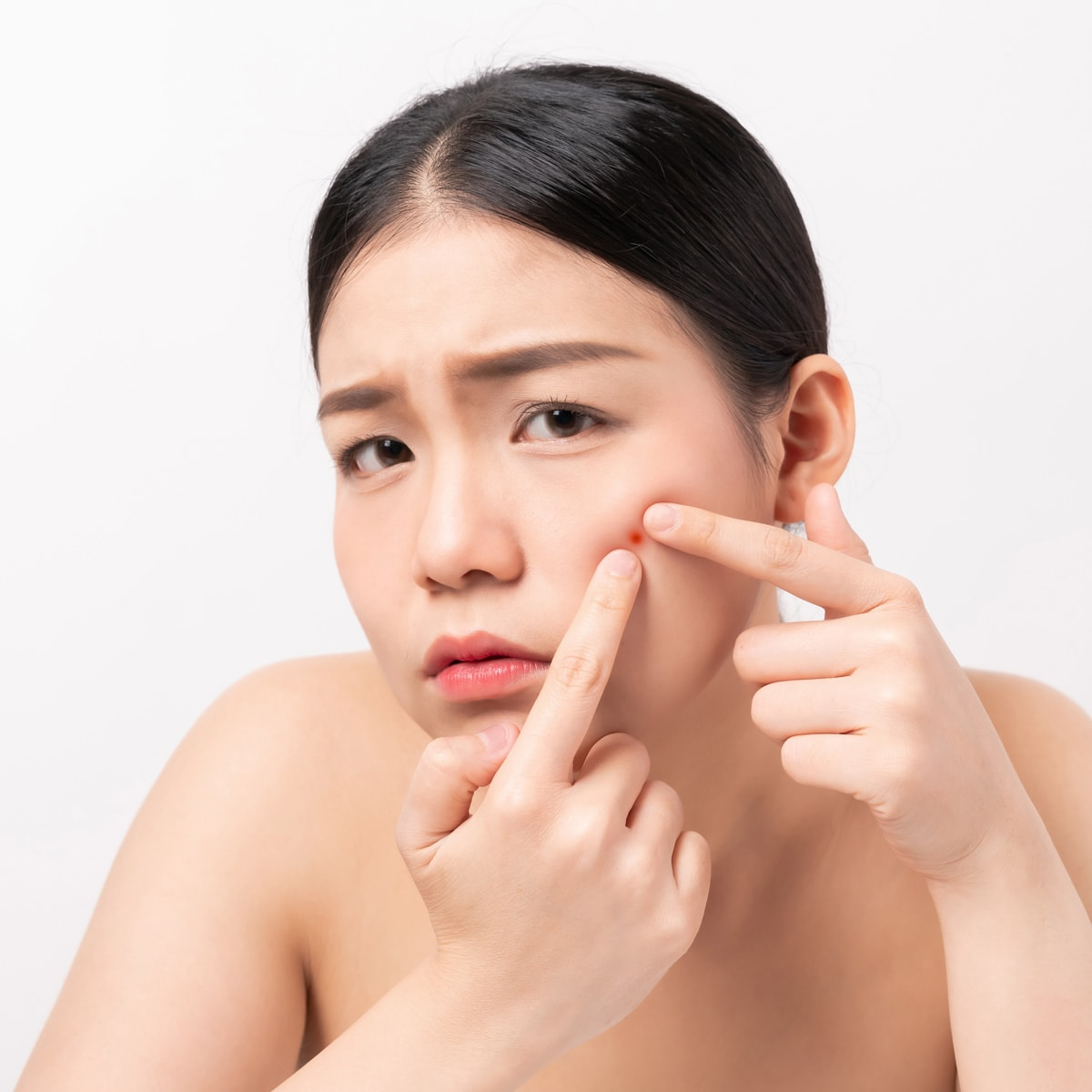 How To Treat Acne Prone Skin 7 Ways To Prevent Acne At Home